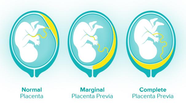 placentaprevia_image
