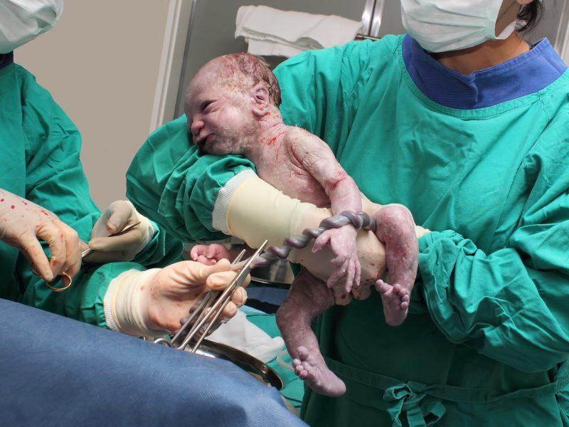 descubra por que esperar três minutos para cortar o cordão umbilical do bebê
