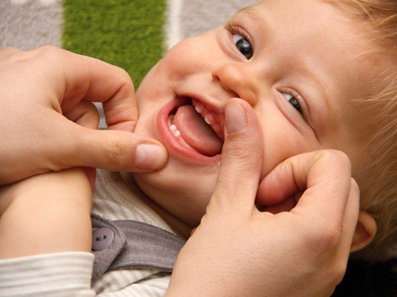 Visita ao odontopediatra pode prevenir o surgimento de cáries em bebês