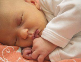 bebê com icterícia