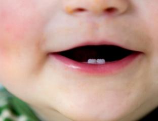 dente natal
